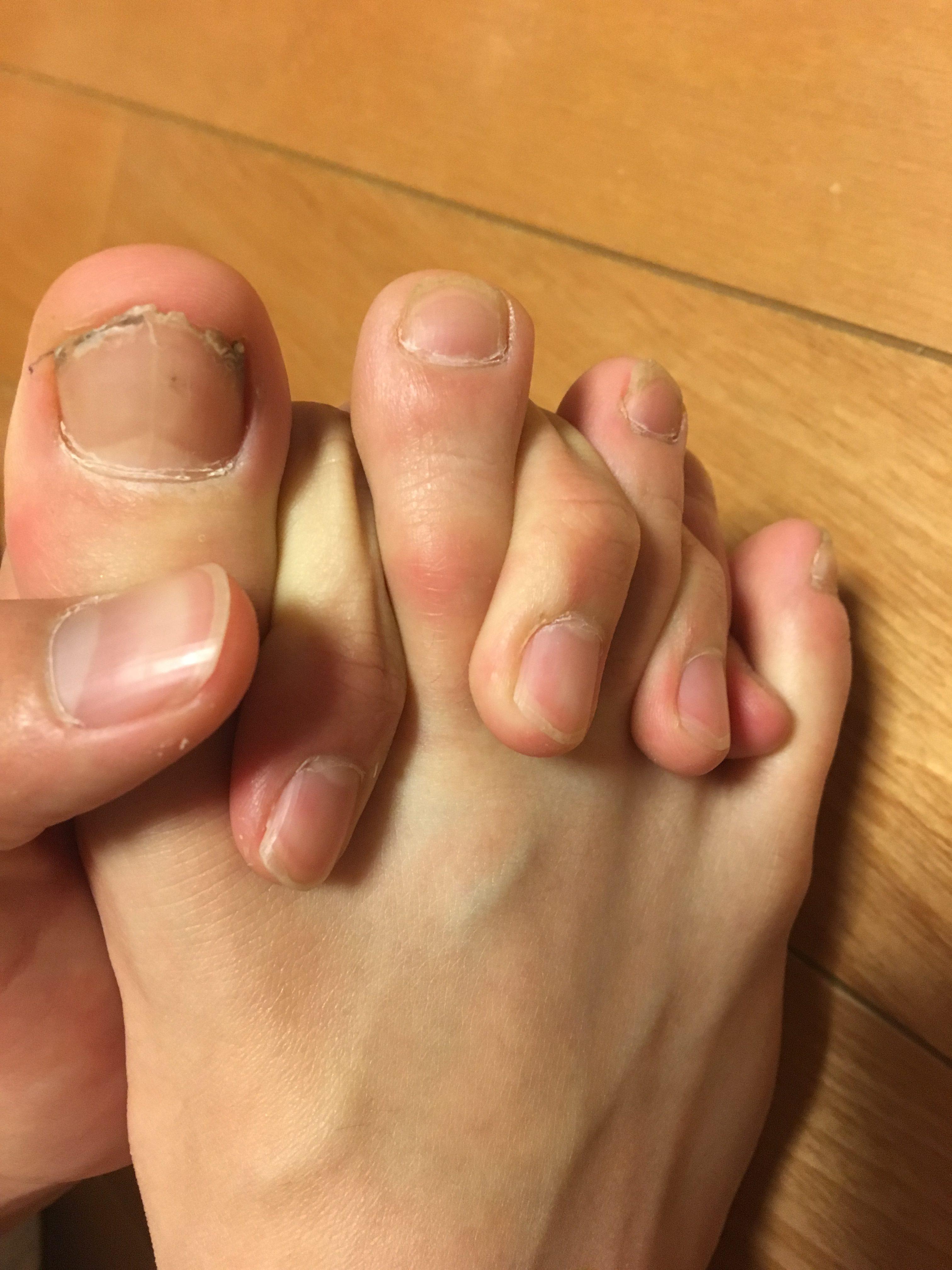 の つる 理由 指 が 足